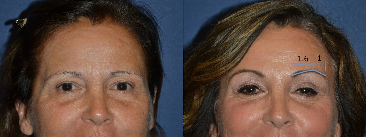 before and after brow lift golden ratio