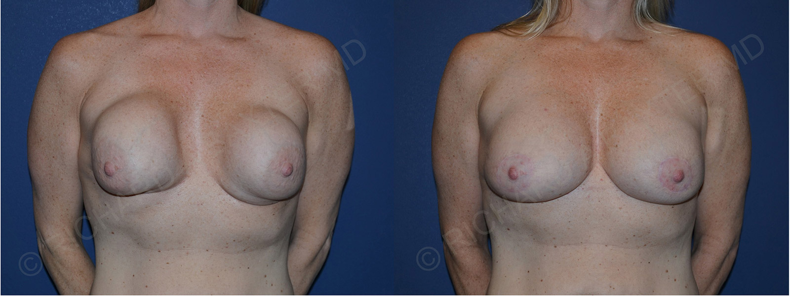 before and after capsular contracture